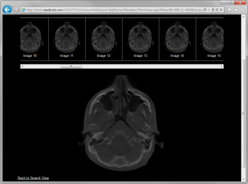 LEADTOOLS Medical Imaging Suite Runtime Licenses 광고